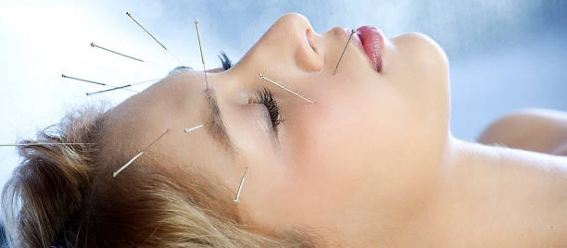 Closeup of beautiful young woman with Acupuncture Needles during healing treatment, selective focus on eye and near needle