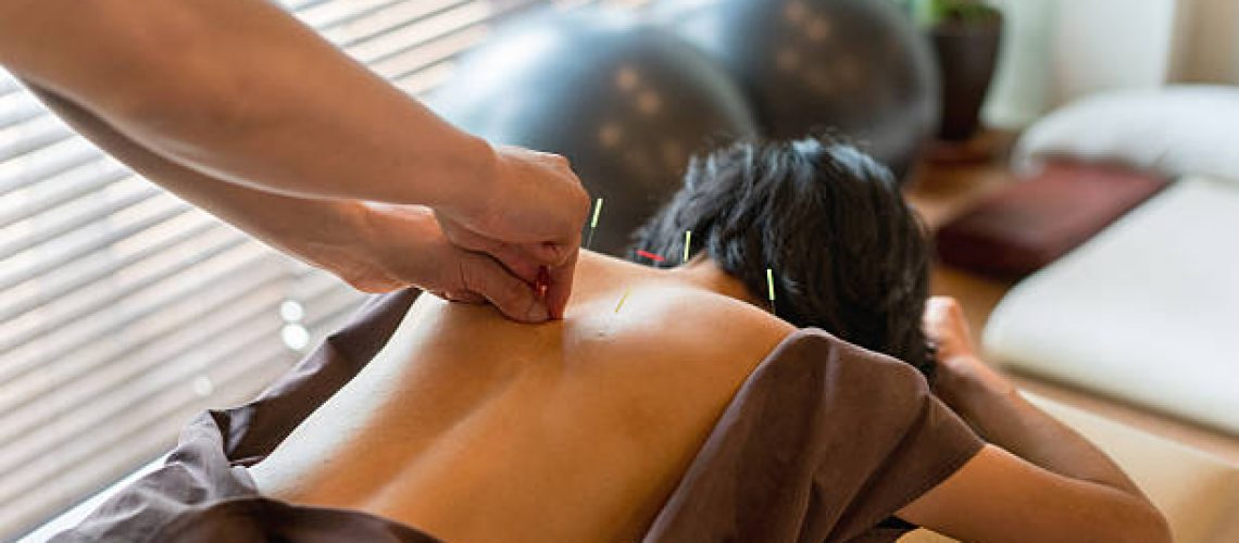 Woman at the acupuncturist and doctor placing needles on her back - alternative medicine concepts